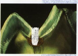 Der Zahn im Schliffbild ist nun fissurenversiegelt.