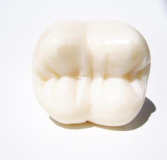 Ozontherapie, Zahnarzt, Kariesbehandlung